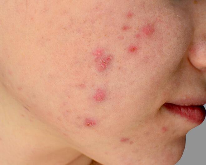 Posti ipodermici sul trattamento di faccia e le ragioni