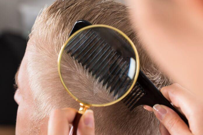 Caduta capelli uomo: diradamento capelli