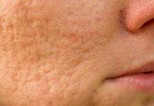 Cicatrici acneiche: cicatrici acne