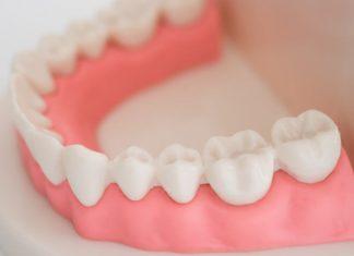 Denti gialli: bicarbonato denti