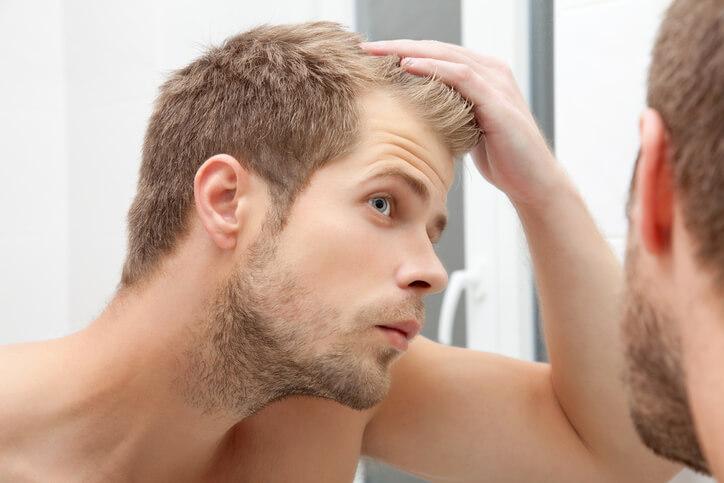 diradamenti capelli