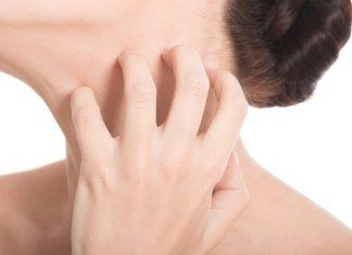 brufoli sul collo cause
