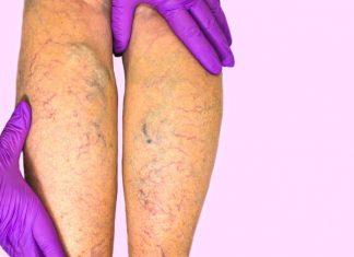 sclerosanti capillari gambe