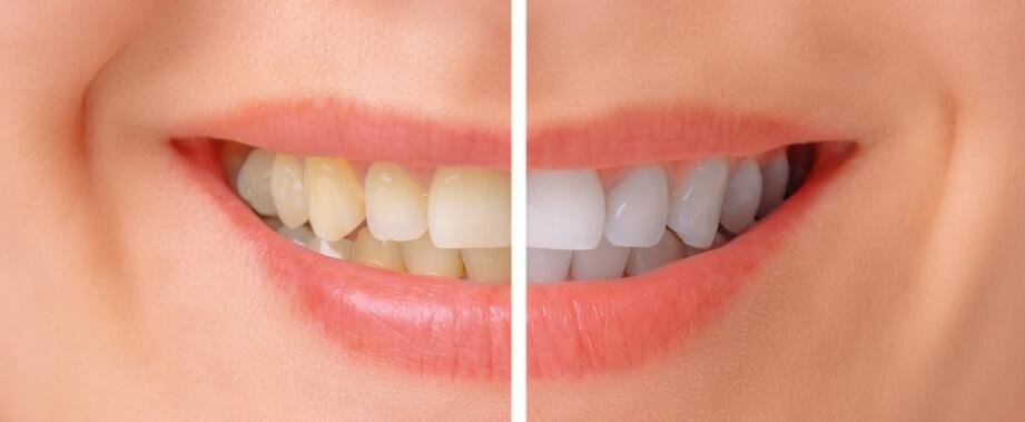 sbiancamento denti fai da te: denti bianchi