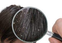 desquamazione cuoio capelluto: forfora e prurito