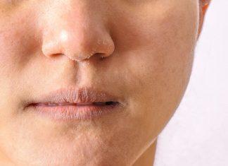 naso secco rimedi della nonna e rimedi naturali