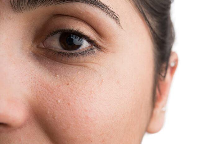 grani di miglio occhi come eliminarli