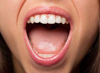 macchie sulla lingua rimedi