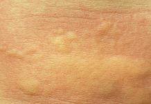 macchie rosse sul corpo rimedi