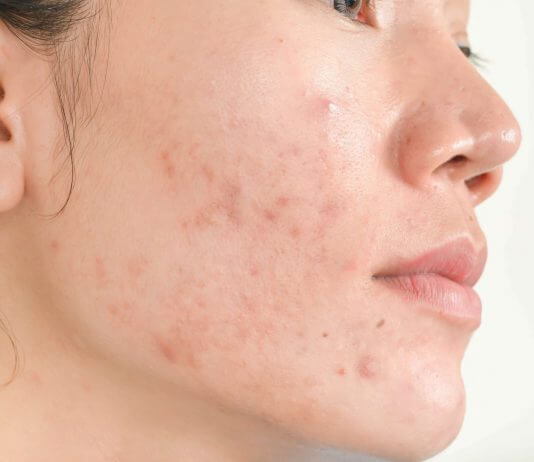 acne comedonica cura