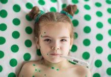 cicatrici varicella e bolla varicella