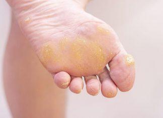 verruche plantari e verruche piedi